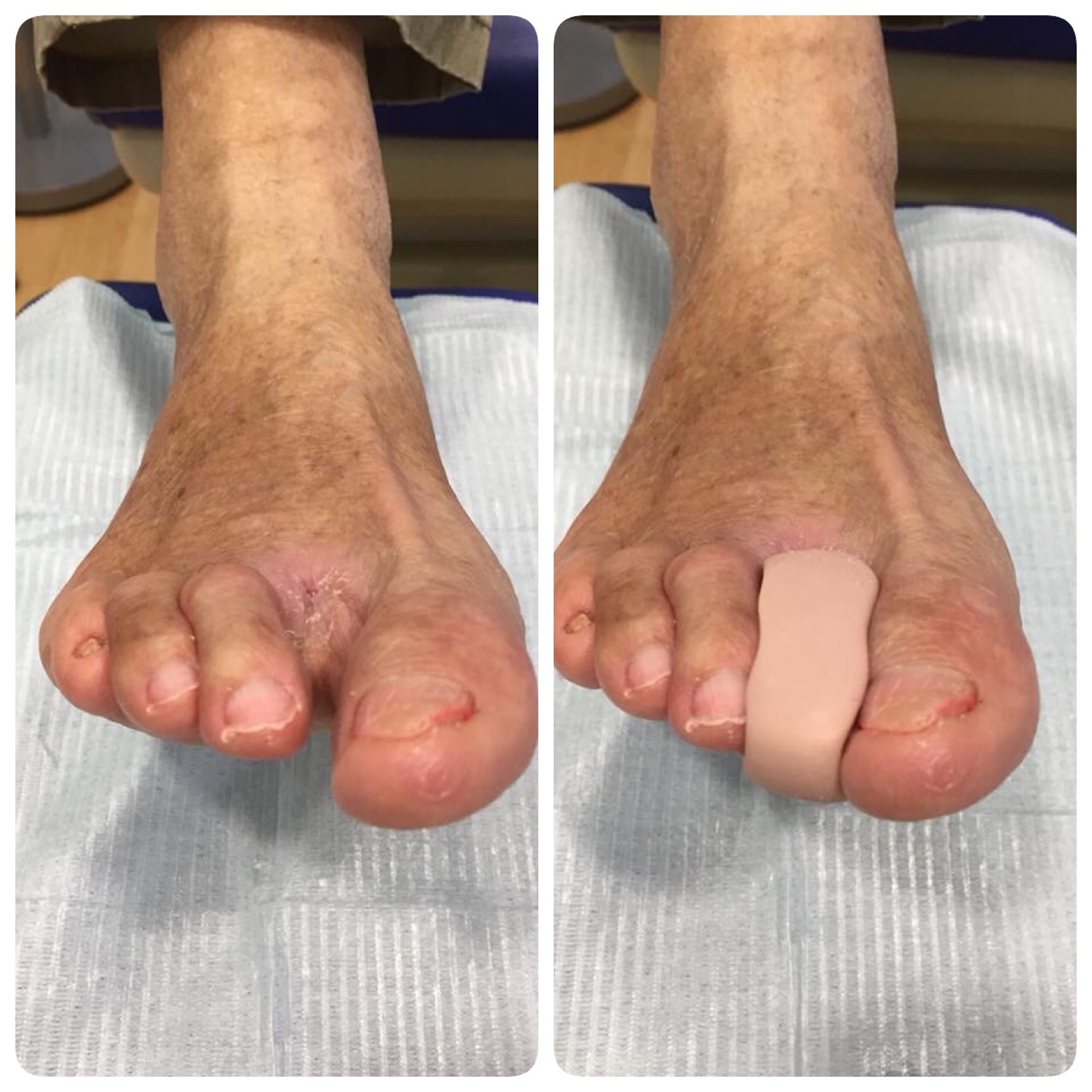Ortesis de silicona para suplir dedos amputados