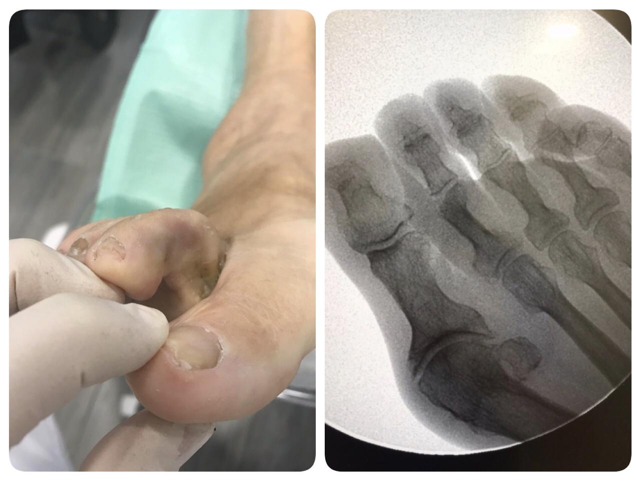 Cirugía ambulatoria del pié Sant Boi de llobregat Barcelona