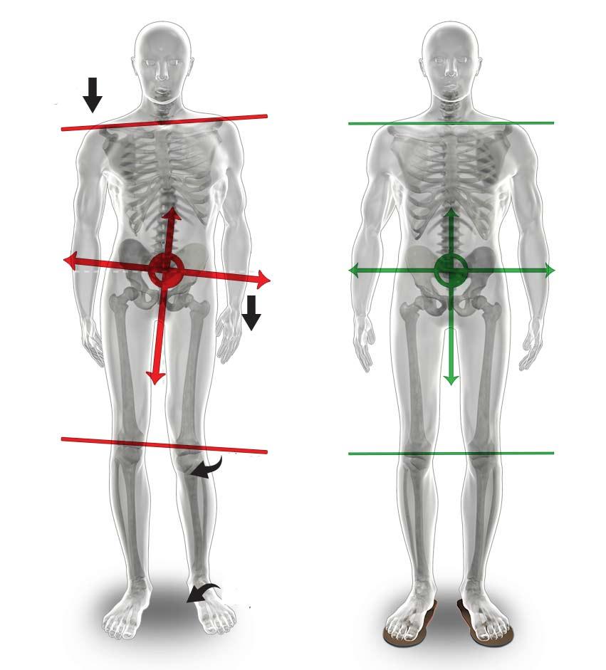 Posturología. Nos dedicamos a todo lo relacionado con los pies y con la biomecánica  que pueda afectar al cuerpo humano.