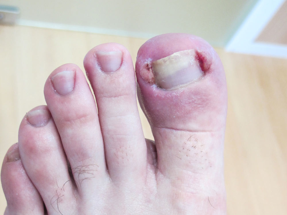 Cirug a podol gica sant boi barcelona podolog a marianao for Operacion de pies