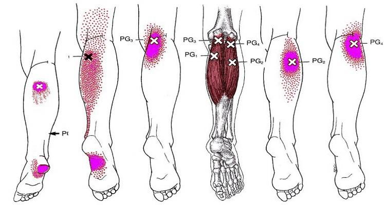 La podología general trata las patologías más comunes. La quiropodia es la rama que se encarga del tratamiento de dichas patologías.