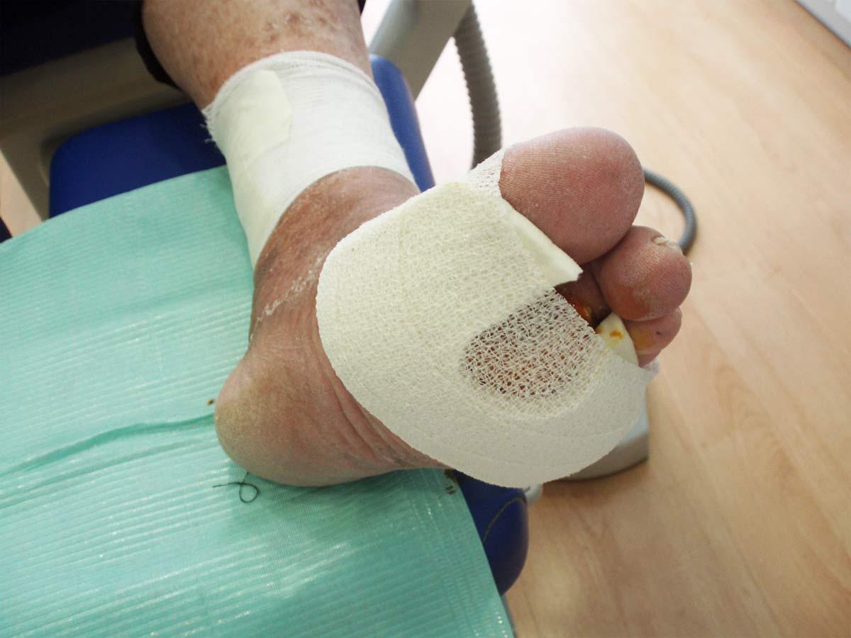 La prevención de complicación en el pie diabético se basa en educación del paciente y medidas de higiene con revisiones periódicas por parte del podólogo.