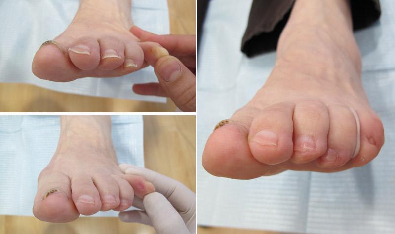 Ortesis de silicona para proteger y evitar callosidades entre los dedos