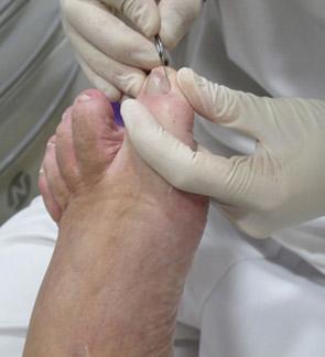 Podología General. Sant Boi de Llobregat. Tratamiento de callos, ojos de gallo, durezas, uñas engrosadas, uñas encarnadas